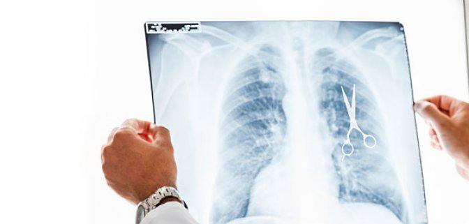 Medizinische Behandlungsfehler: Wer haftet, wenn der Arzt etwas falsch macht?